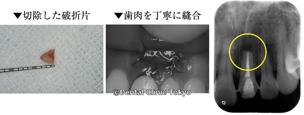 歯根端切除