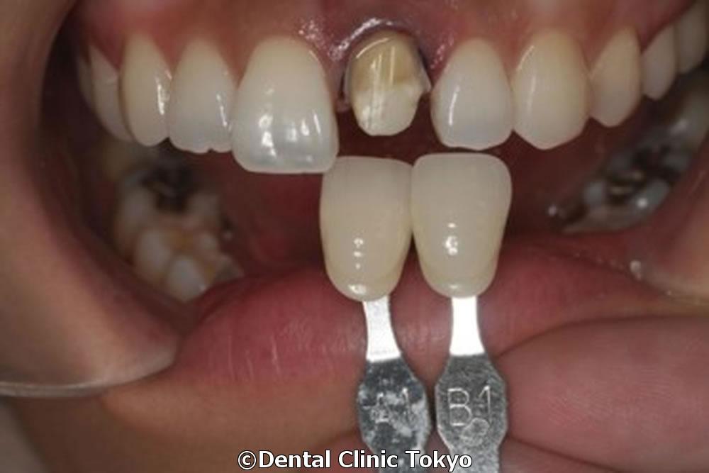 神経 を 抜い た 歯 寿命
