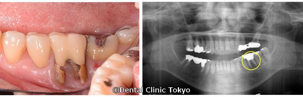 右下の奥歯
