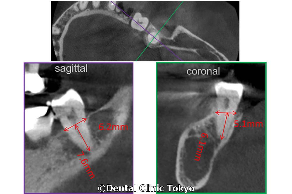 移植歯の検査