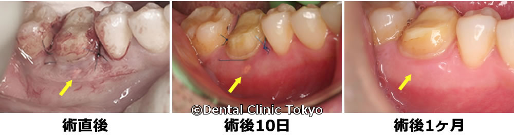 歯周再生療法後の経過観察