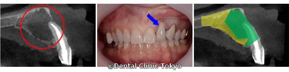 歯根端切除術と再植の併用による歯の保存をご提案
