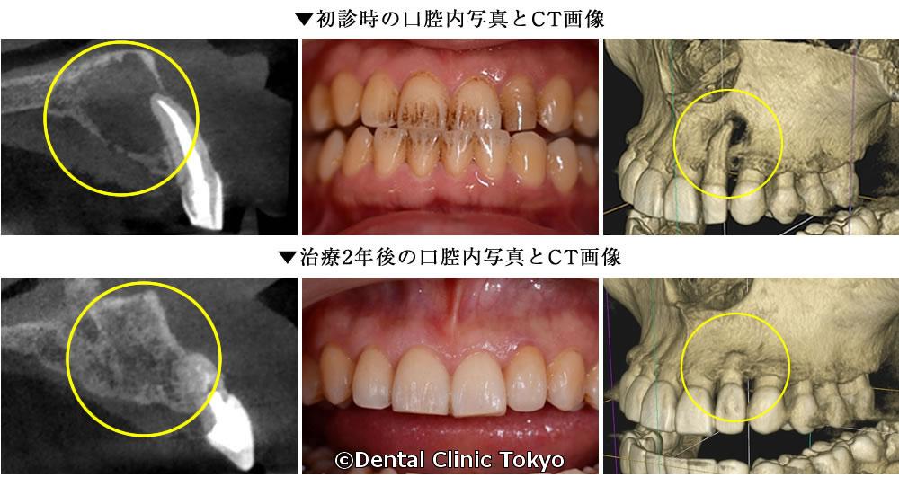 初診時と2年後の口腔内
