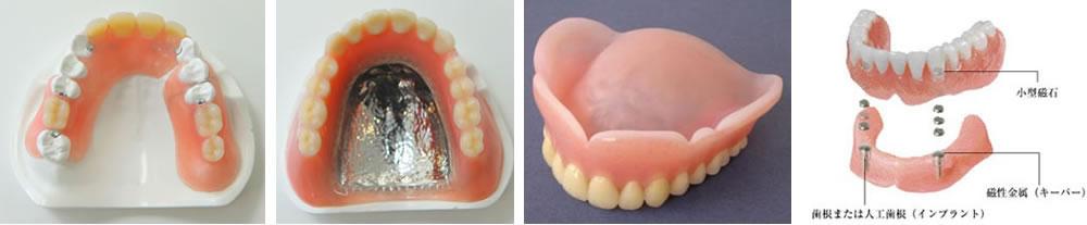 多種多様な入れ歯