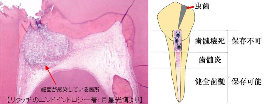 バイタルパルプセラピー(断髄法)