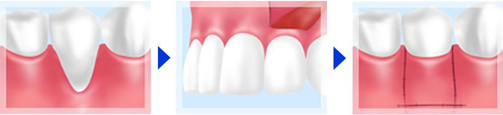 FGG(遊離歯肉移植術)法