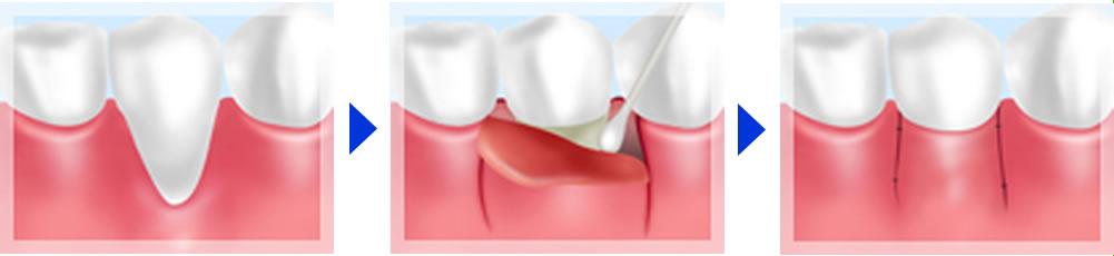 APF(歯肉弁根尖側移動術)法